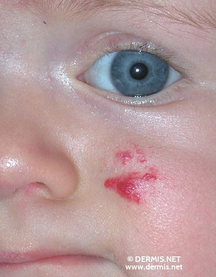 localisation: cheek diagnosis: Hemangioma