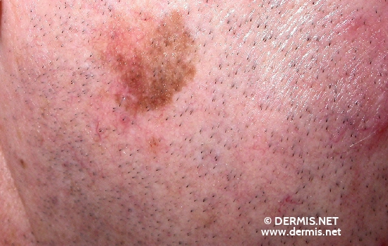 localisation: cheek diagnosis: Lentigo Maligna Melanoma (LMM)