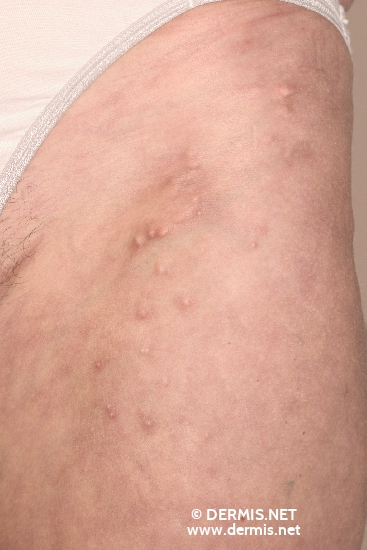 localisation: upper leg diagnosis: Calcinosis Cutis
