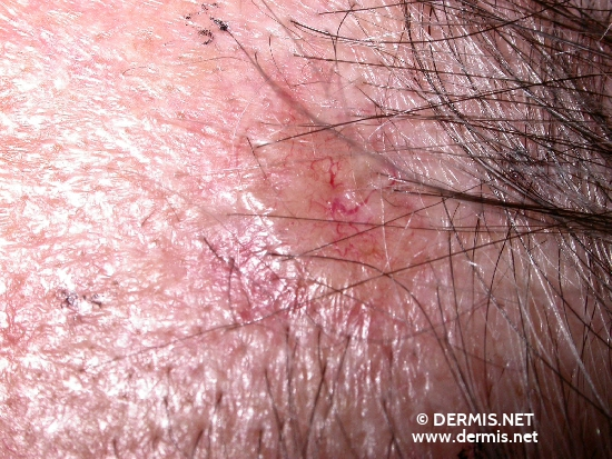 localisation: hair line diagnosis: Basal Cell Carcinoma