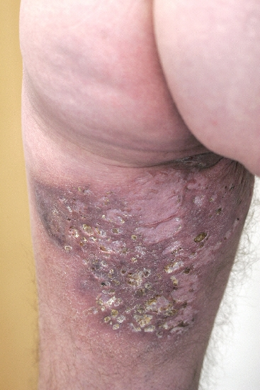 localisation: upper leg diagnosis: Acne Inversa