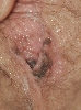 localisation: [n/a], diagnosis: Superficial Spreading Melanoma (SSM)