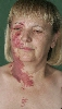 localisation: [n/a], [n/a], diagnosis: Superficial Spreading Melanoma (SSM), Nevocytic Nevus