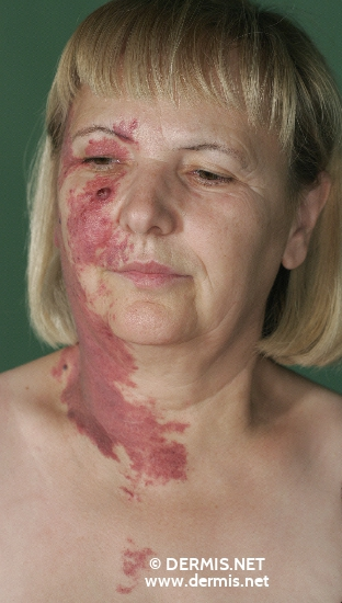 localisation: [n/a] [n/a] diagnosis: Superficial Spreading Melanoma (SSM) Nevocytic Nevus