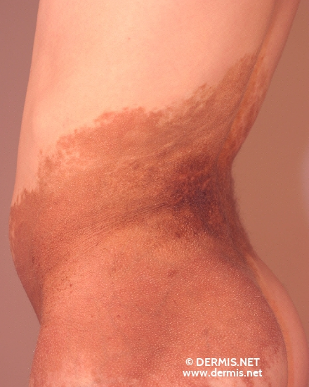 localisation: back diagnosis: Superficial Spreading Melanoma (SSM)